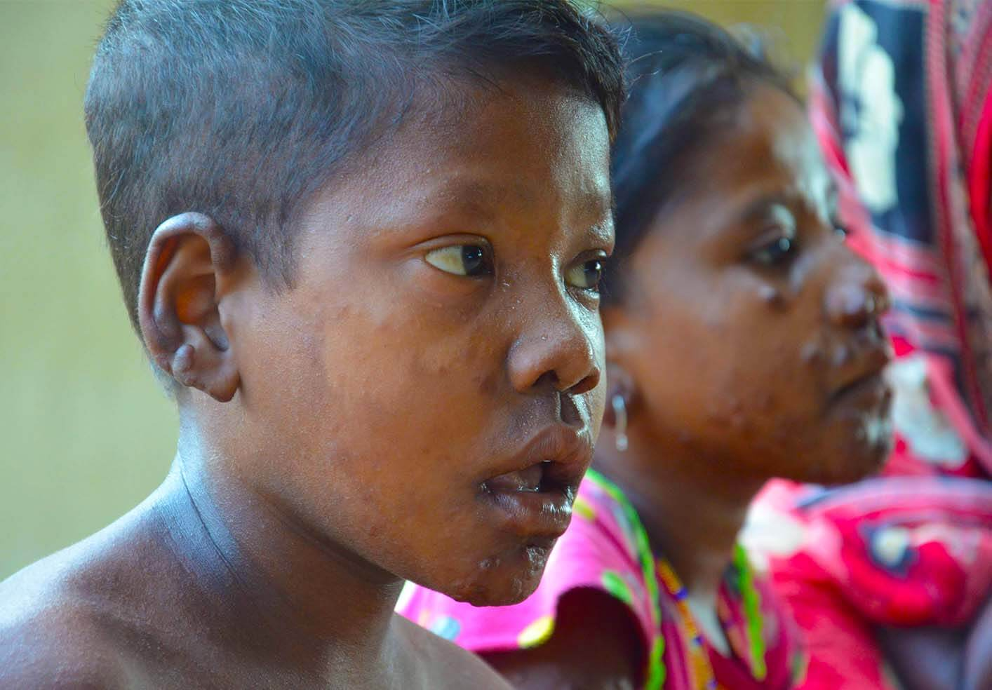 Leprosy-And-Disability